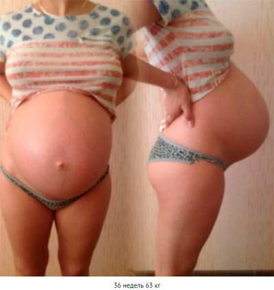 Животики на 36 неделе беременности